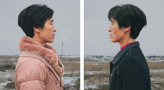 Потрясающие фотографии однояйцевых близнецов: движение судьбы в их облике